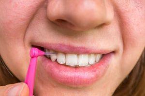 Szczoteczka doaparatów ortodontycznych imostów Brzesko Bochnia
